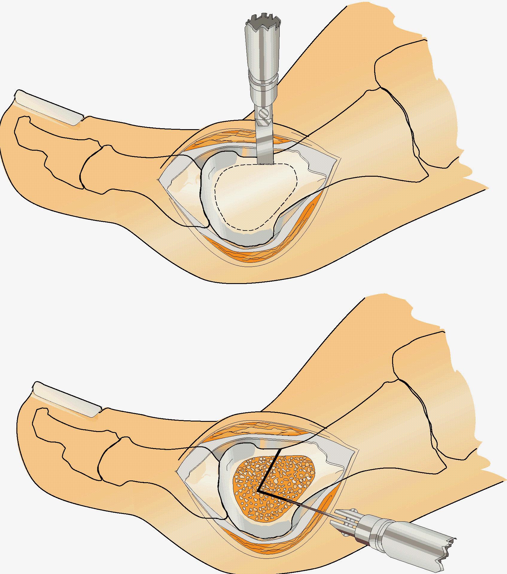 nageltrång operation läkningstid